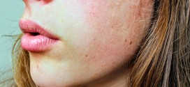 Acne rosacea: come riconoscere questa malattia del viso dalle grandi ripercussioni emotive