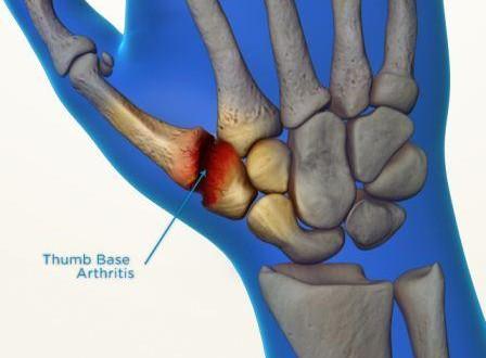 La rizoartrosi o artrosi del pollice
